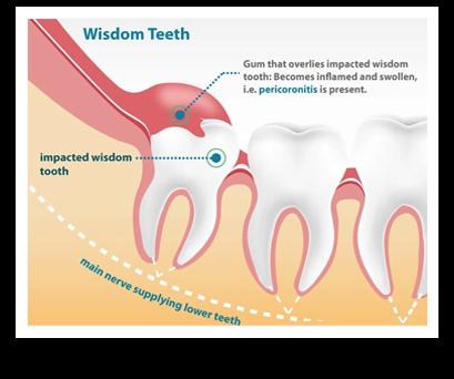 wisdom teeth shelbyville tn